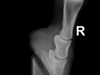 Röntgen rechts vorne 4