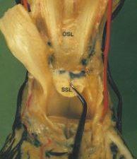 Hufrolle - anatomische Strukturen